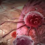 Measles Myths