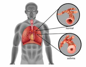 diagram showing asthma in lungs